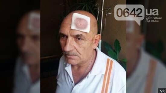 Арестович: Подполковника «армии ДНР» под видом парализованного пенсионера вывезли в Украину, фото-2